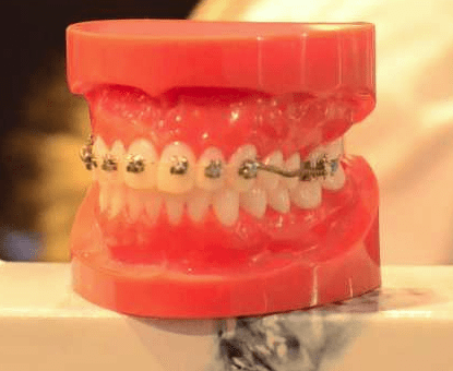 Medically Indicated Orthodontic Care: A Change in Concept